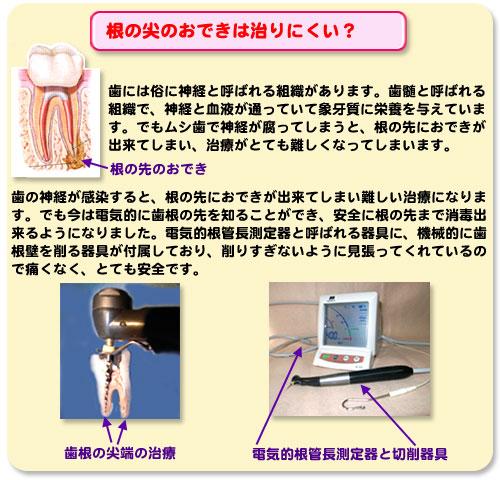 電気的根管長測定器と、切削器具